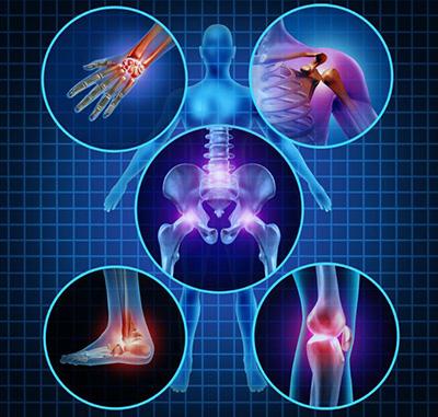 Quiropractica dolor artritis o artrosis
