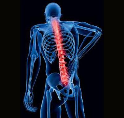 Lumbalgia dolor ciatica